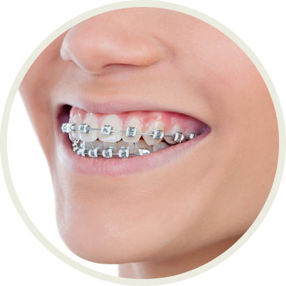 Color My Braces Raleigh Cary Garner Wendell Nc Mcclure Orthodontics